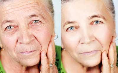 تکنیکهای مراقبت از پوست صورت و گردن