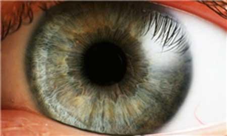 اخبار علمی - خطوط عجیب داخل چشم چه هستند؟+تصاویر