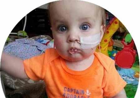 این پسر یک ساله هنوز دهان باز نکرده است+تصاویر